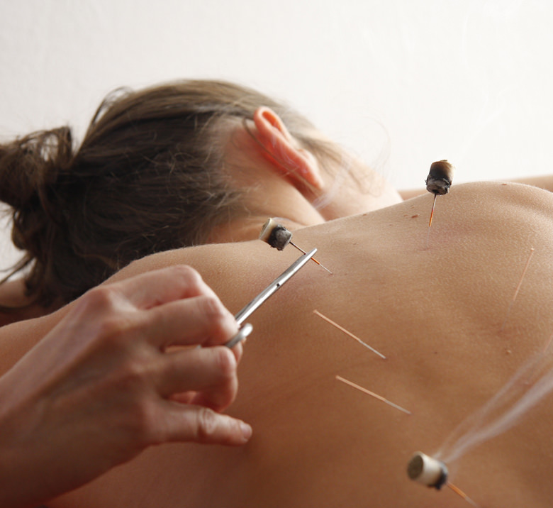 Acupuncture-Session-Atzmon-Chiropractor-Totowa-NJ-780-716